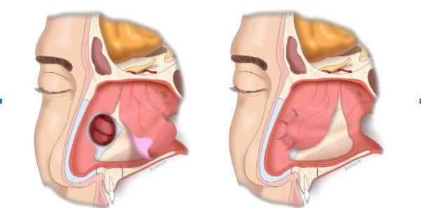 perforación del tabique en Móstoles